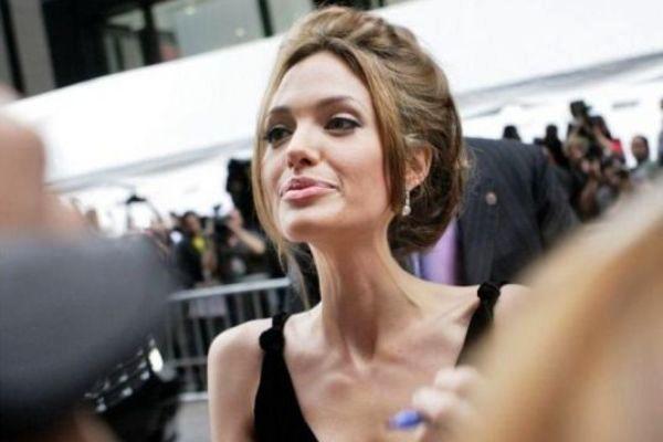 Atriz Angelina Jolie aparentando estar com anorexia.